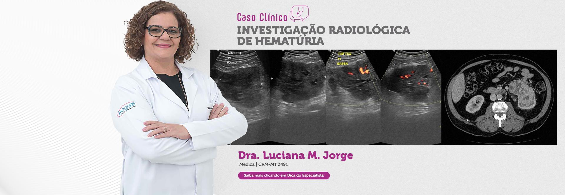 Investigação radiológica de hematúria