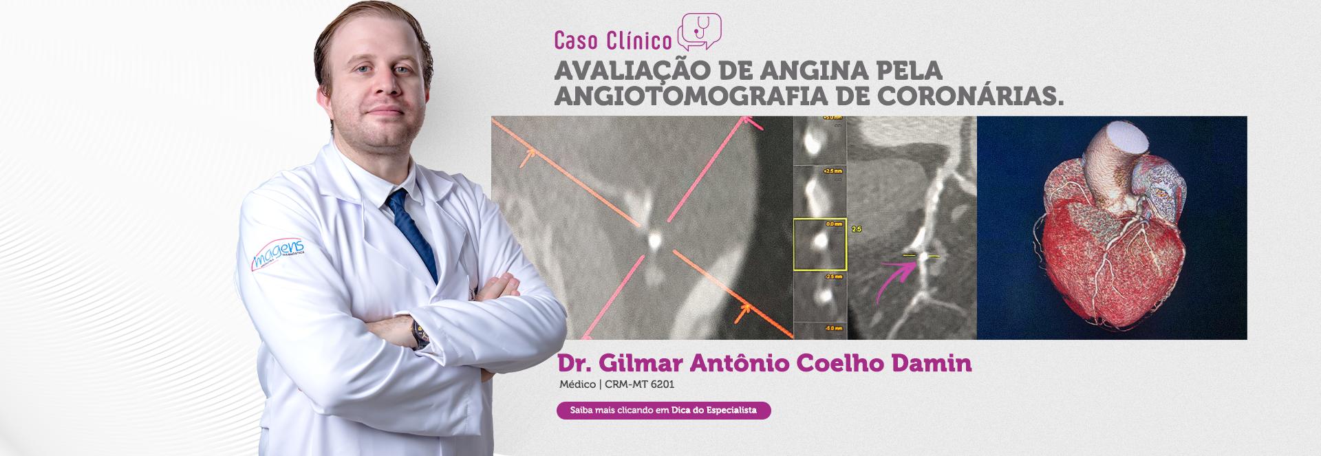 Avaliação de Angina pela Angiotomografia de Coronárias