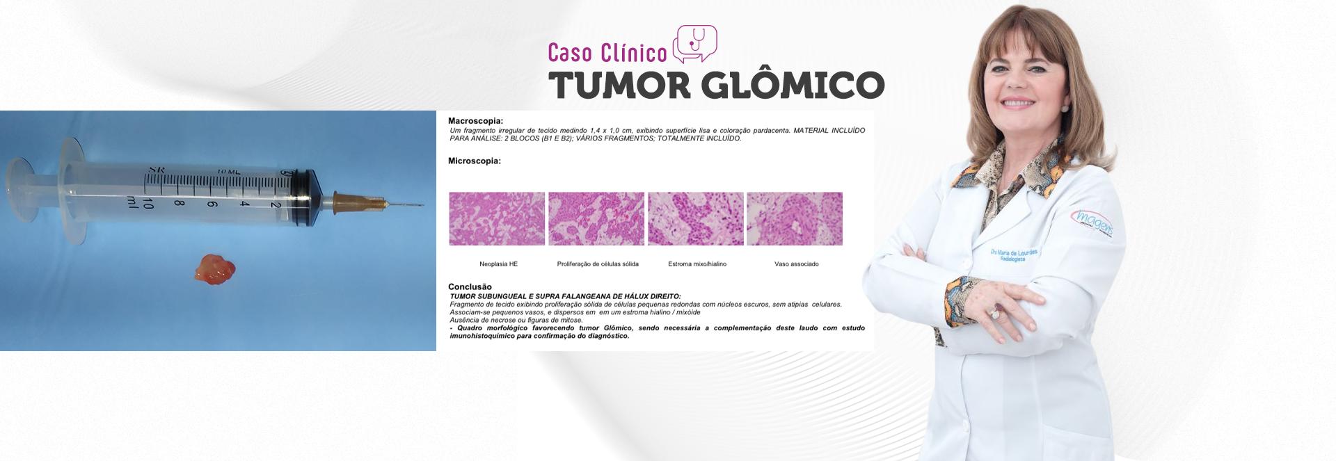 Tumor glˆomico